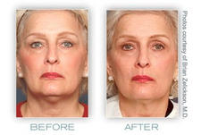 Non-surgical-face-lift-to-renew-skin-contours-Thermage-reduces-the-signs-of-aging-skin_call_my_stylist_image