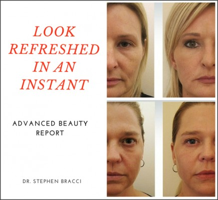 dr Bracci- non surgical lift-lead