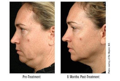 Non-surgical face-lift to renew skin contours    Thermage reduces