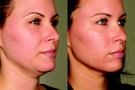 Ultherapy- Before & After